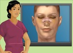 Simulation-ng-plastic-surgery